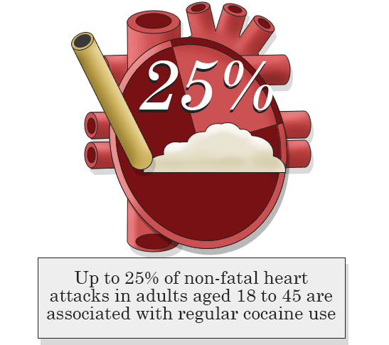 cocaine and heart attacks